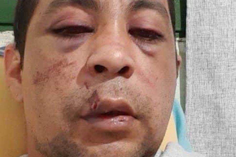 Golpearon a un enfermero recuperado de coronavirus y le incendiaron la casa